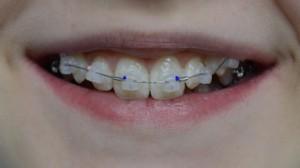 Эстетические брекеты зафиксированы на верхних зубах: первое посещение