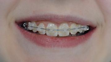 Работа ортодонтической дуги: прошло два месяца