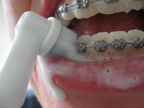 Повреждают ли брекеты эмаль зубов
