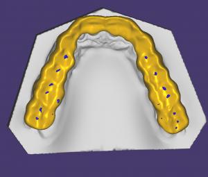 Миорелаксационная окклюзионная шина (сплинт) StarSmile